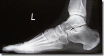 stopa zdrowa - lat rtg